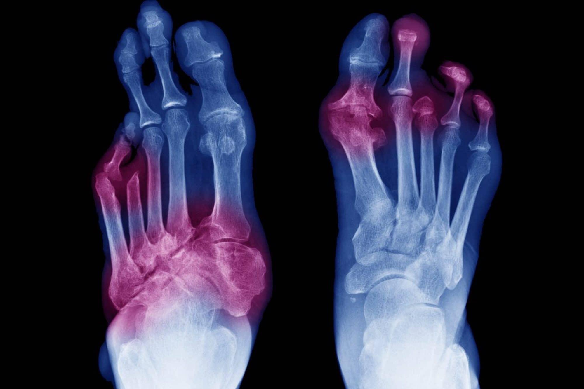 Chirurgie du pied - Dijon